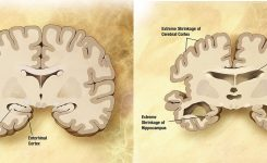 Battling Alzheimers – Connect A Vision
